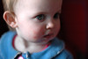 Steeds meer kinderen met krentenbaard bij de huisarts