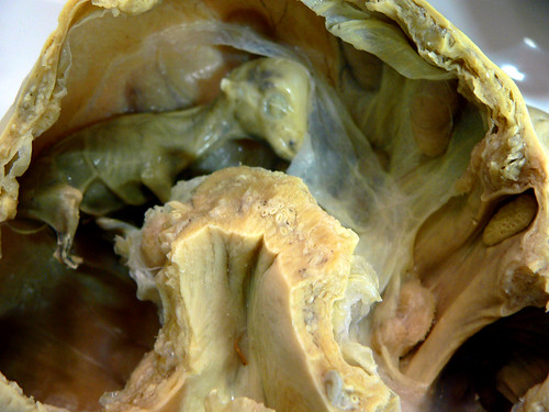 plastinated fetal calf inside its mother's womb