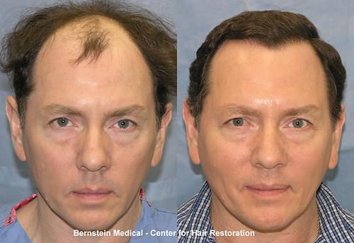 Artas Hair Transplant Kansas City