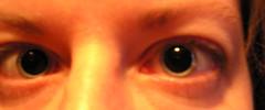 dilated pupilzz