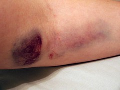 Bruise 2a