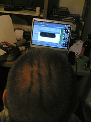 The weird ridges on the back of my head