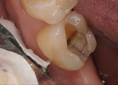 silver fillings and tooth fractures