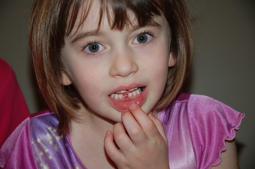 Gracie's First Lost Tooth