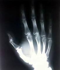 George X-ray