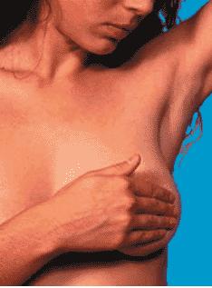 Women performing Self Breast Examination