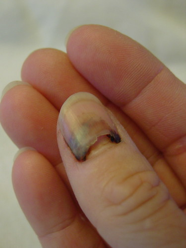 Smashed Thumb Nail Popped; How To Treat a Nail Injury Discussion ...