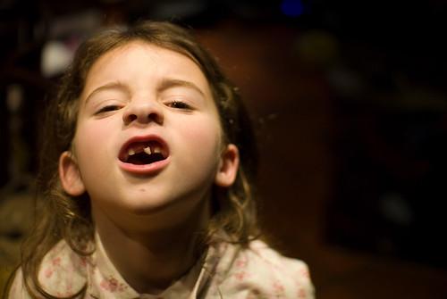 Zelie haar tanden vallen uit!