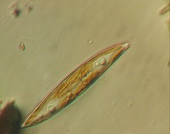 7c. Large Red Diatom (400x) Photo