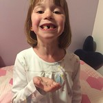 Fourth tooth gone. Full square gap now.<br/>10 Apr 2016