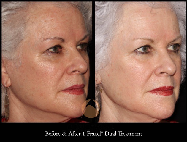 Fraxel Laser - Fraxel Restore Age Spots Treatment - Chicago, IL