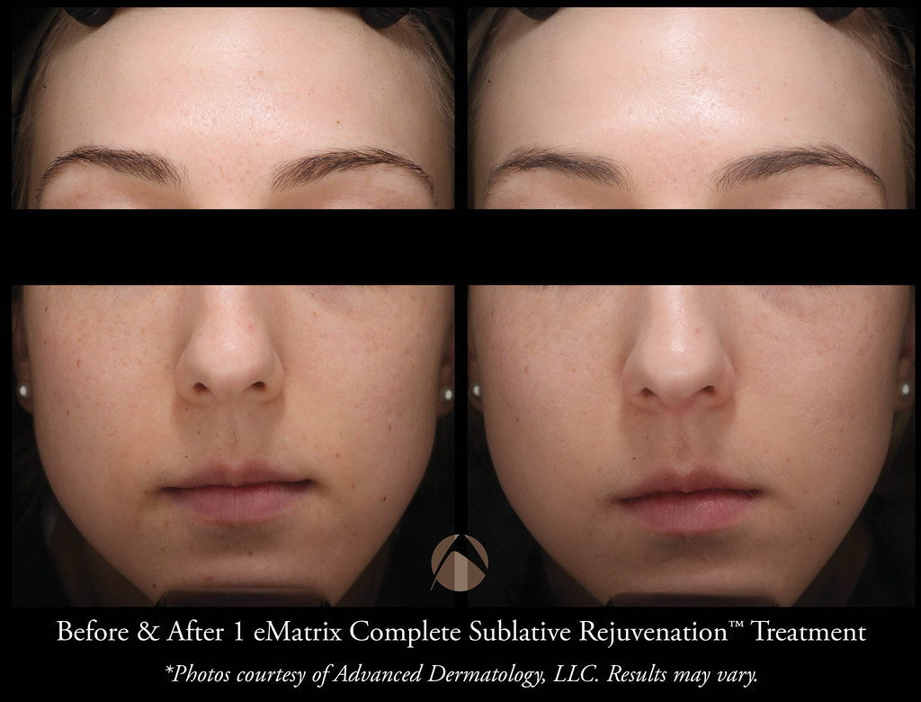 Sublative Rejuvenation with eMatrix Treatment - Chicago, IL