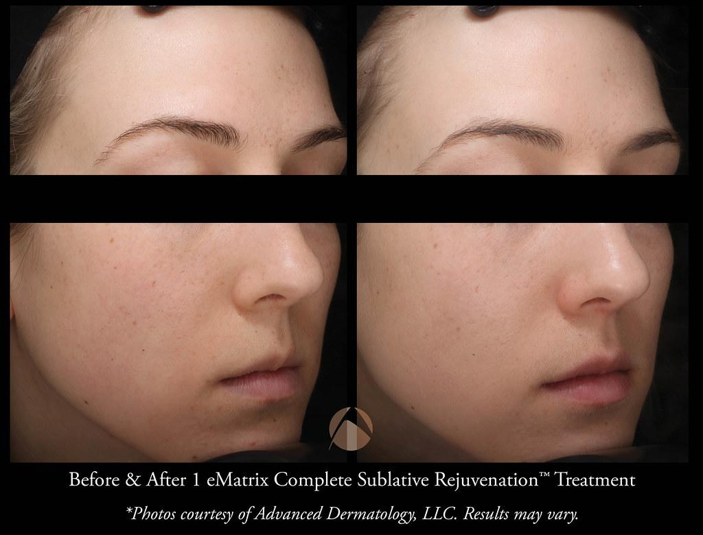 Sublative Rejuvenation with eMatrix Treatment - Chicago, IL