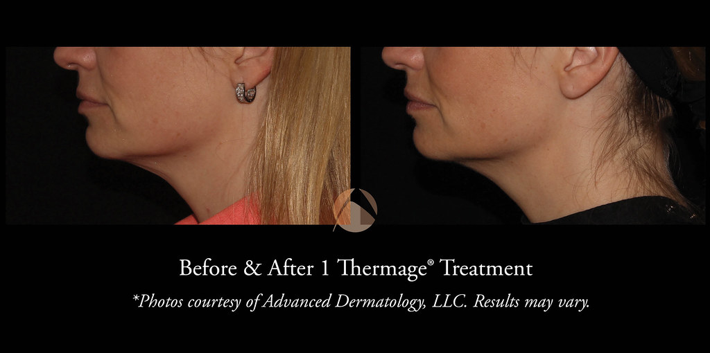 Thermage Procedure in Chicago, IL | Advanced Dermatology