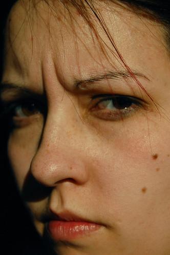 get rid of dark spots on skin