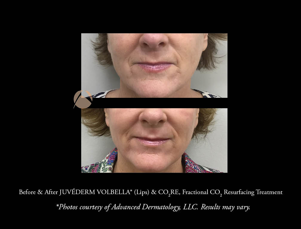 JUVÉDERM VOLBELLA® XC, for lip augmentation and filling in lip lines