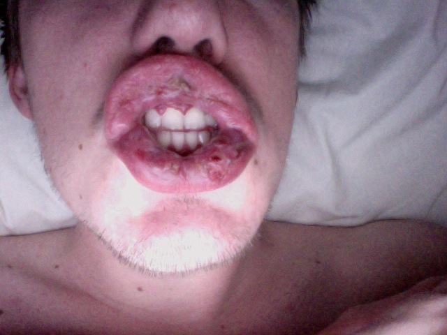 herpes mouth sores pictures. also known as mouth ulcers