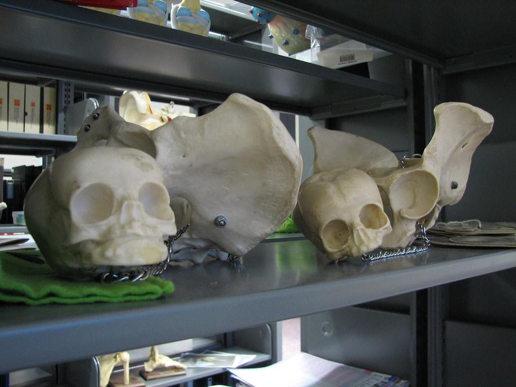 baby skulls & momma pelvises