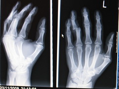 X-ray of the dislocated finger of my left hand photo by fixedwheelnut