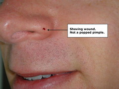 Nose Wound