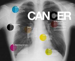 Cancer ! Change the mentalities (free download poster) photo by Rétrofuturs (Hulk4598) / Stéphane Massa-Bidal