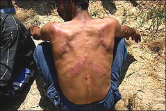 Man Beaten, (Tortured?) by Iraqi Police