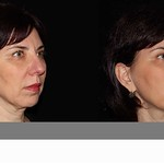 Before & After BOTOX® Cosmetic & Juvederm®