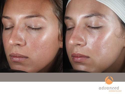 Ematrix Advanced Dermatology
