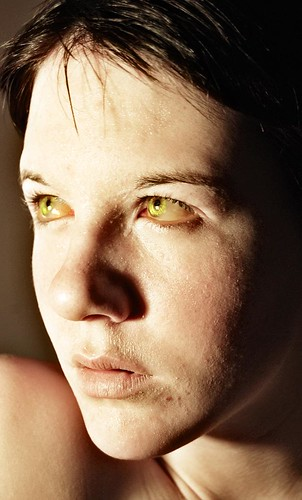 yellow fever victims eyes