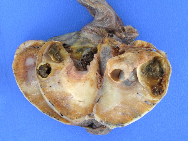 Germ cell tumor - Turkcebilgi English Section