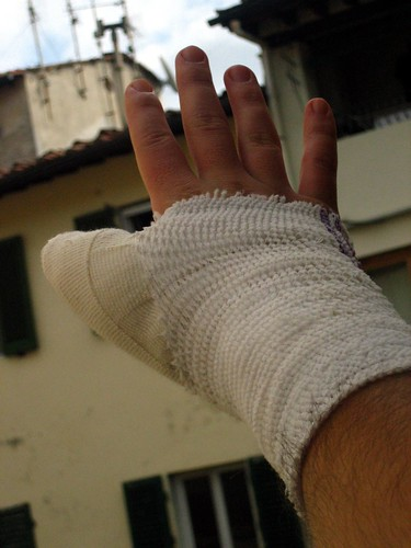 My Hand in the Aftermath