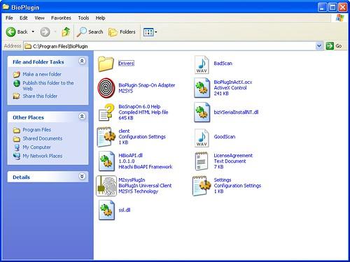 VeinScan0032