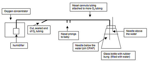 Diagram of Bubble CPAP at Kisiizi Hospital