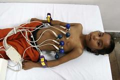 Babli-ECG
