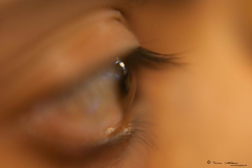 Close up lenses 098