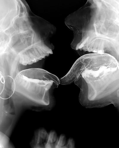 член в девушке под рентгеном фото