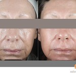 Before & After CO2RE Fractional C02 Resurfacing Treatment