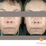 Before & After BOTOX® Cosmetic & Sculptra®