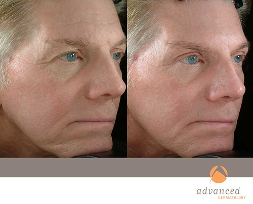Sculptra Aesthetic Filler To Reduce Wrinkles Advanced