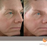 Before & After BOTOX® Cosmetic, Perlane® & Sculptra®
