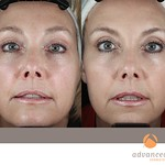 Before & After 5 eMatrix Complete Sublative Rejuvenation Treatments