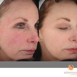 Before & After 3 Photorejuvenation Treatments