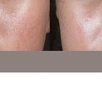 Before & After 5 eMatrix Treatments