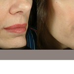 Before & After Restylane® & Sculptra®