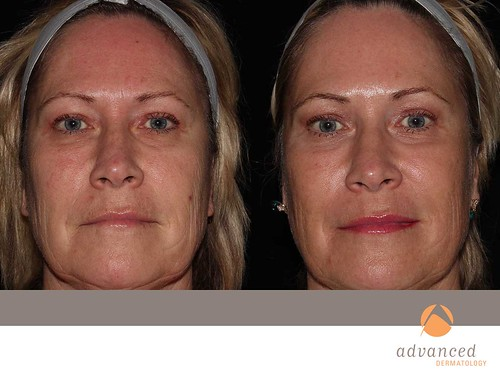Fractional Co2 Laser Resurfacing Chicago Il Advanced