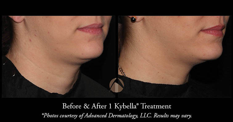 Kybella injection for double chin and lipomas  | Advanced Dermatology