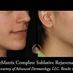 Sublative Rejuvenation With Ematrix Treatment Chicago