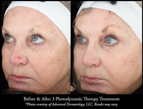 Pdt Advanced Dermatology