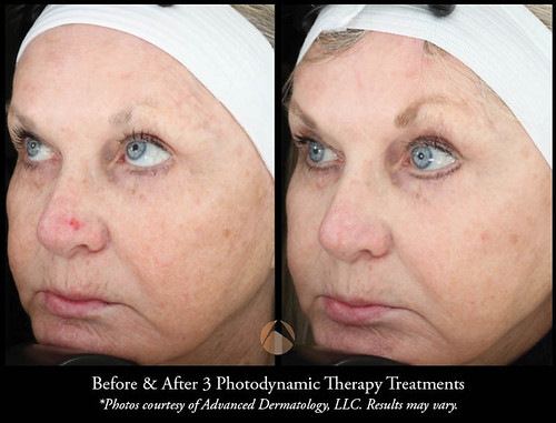 Blue Light Dermatology Decoratingspecial Com