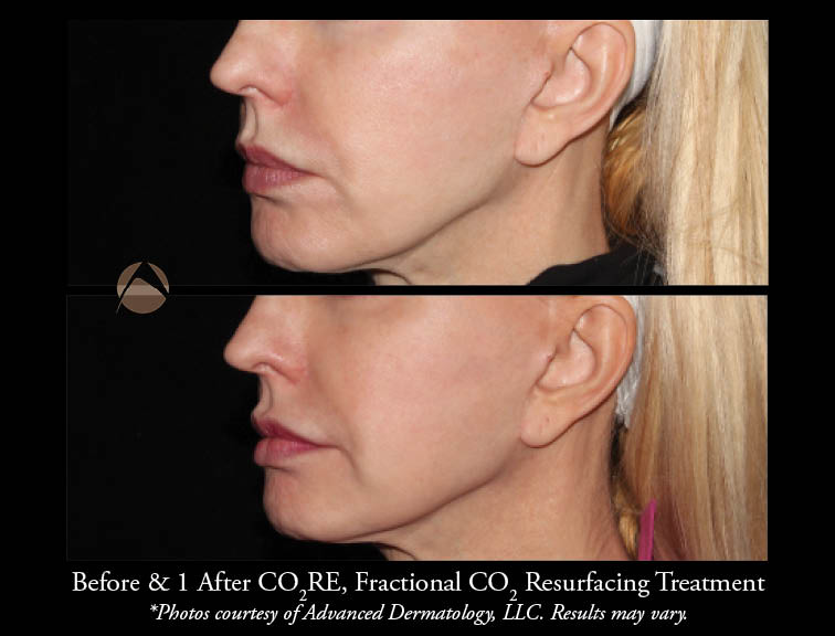 Fractional CO2 Laser Resurfacing – Chicago, IL | Advanced